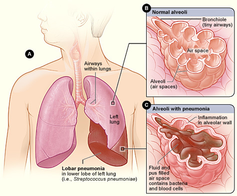 Lobar Pneumonia Illustrated